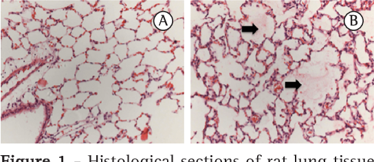 Figure 1 - Histological sections of rat lung tissue after 6 h (in A) and 12 h (in B) of ischemia in the normal saline group. The arrows show the presence of alveolar edema in B (H&E; magnification, ×100).