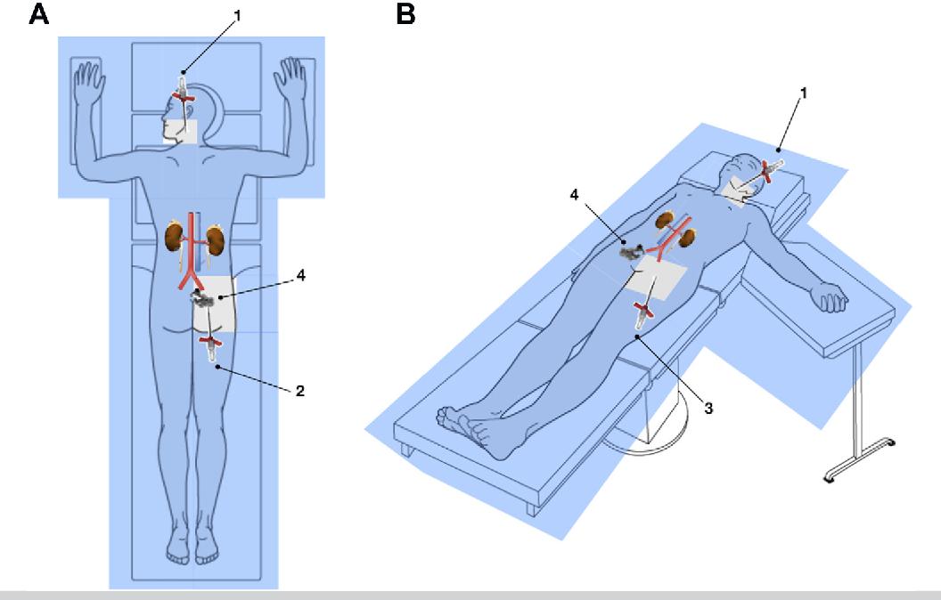Successful Percutaneous Transgluteal Embolization Of A Complex