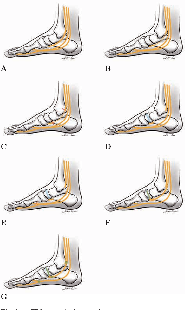 Pdf Surgical Treatment Of The Adult Acquired Flexible Flatfoot