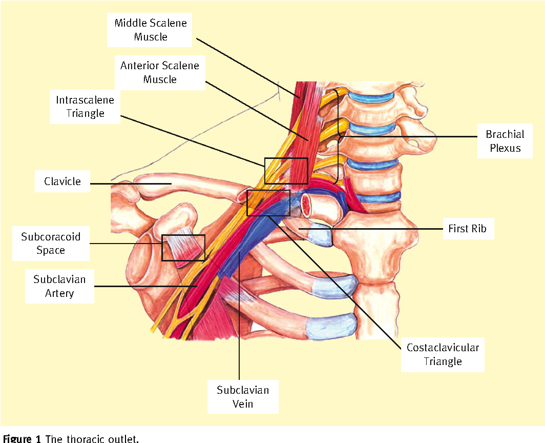 Thoracic Outlet Syndrome Semantic Scholar