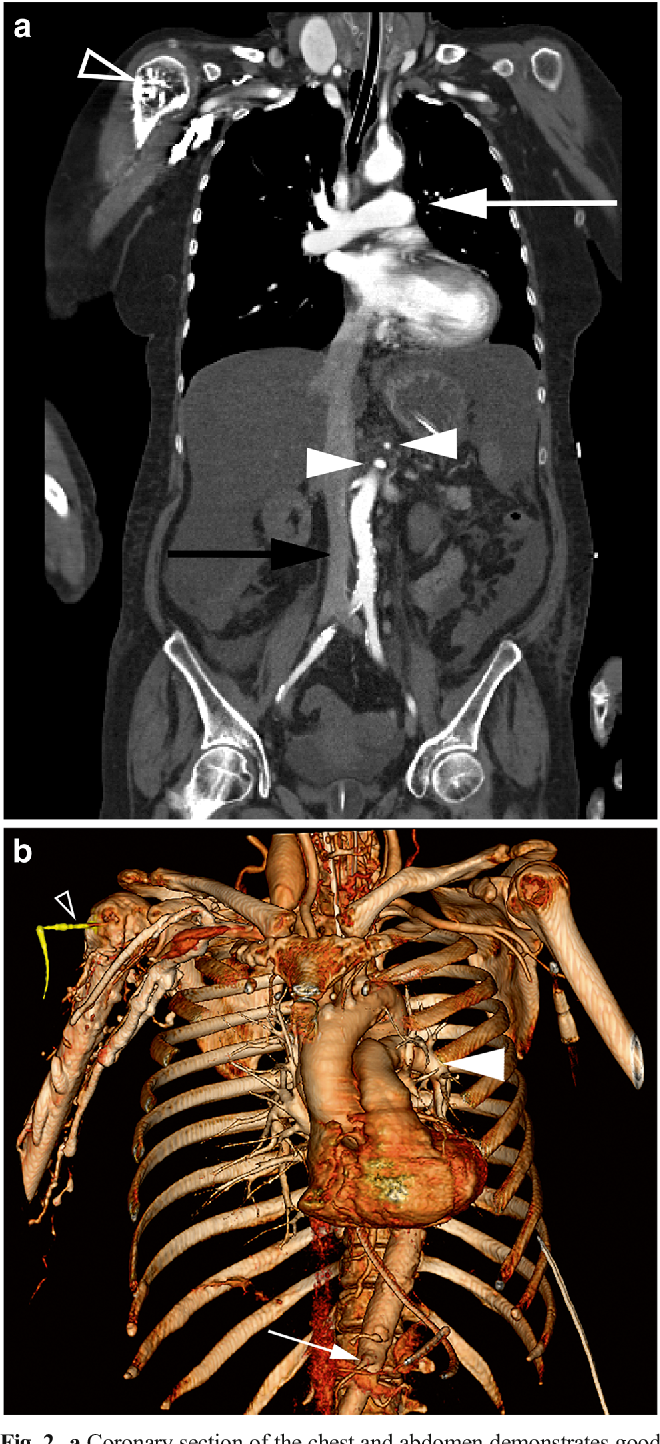 CT angiography of the chest and abdomen in an emergency patient via ...