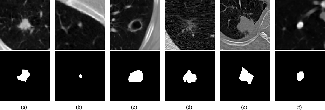Figure 1 for Accurate 2D soft segmentation of medical image via SoftGAN network