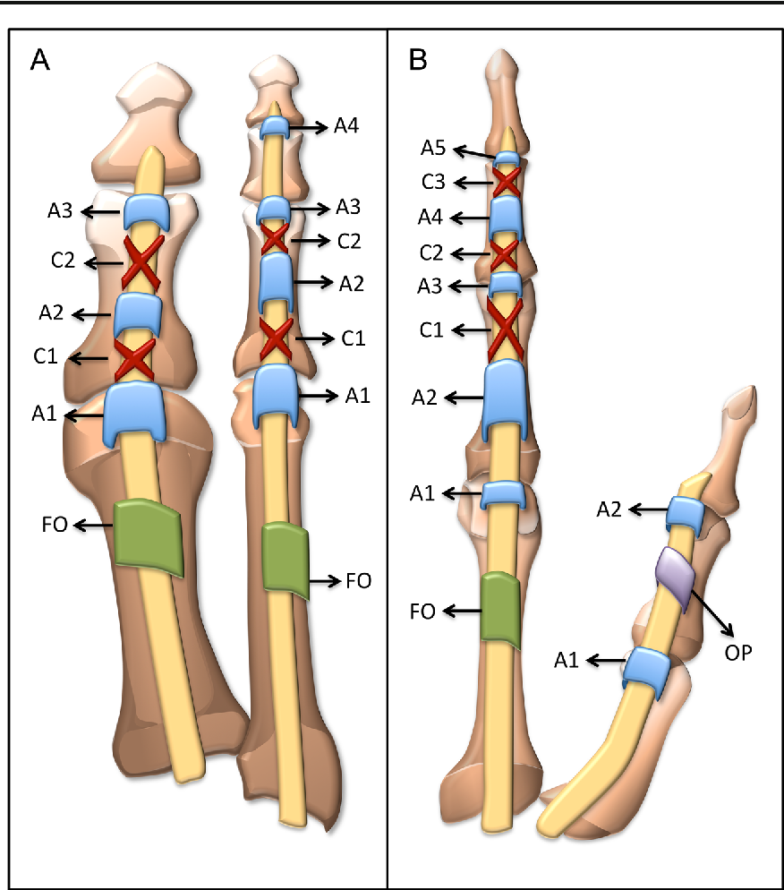 Magnetic resonance imaging of the pulleys of the flexor tendons of ...