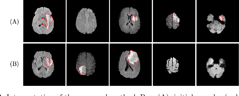 Figure 4 for Suggestive Annotation of Brain Tumour Images with Gradient-guided Sampling
