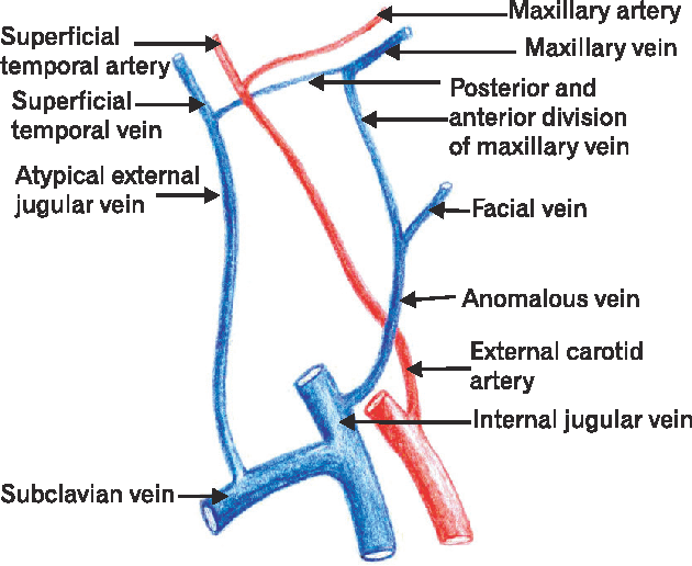 Absence Of Retromandibular Vein Associated With Atypical Formation