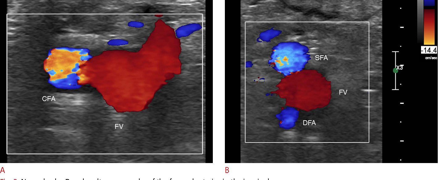 Doppler ultrasonography of the lower extremity arteries: anatomy and ...