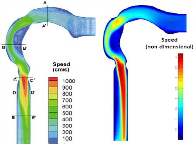 Matrix Based Simulation For Patient Specific Human Respiratory Air