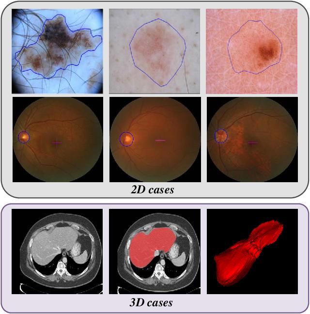 Figure 1 for Transformation Consistent Self-ensembling Model for Semi-supervised Medical Image Segmentation