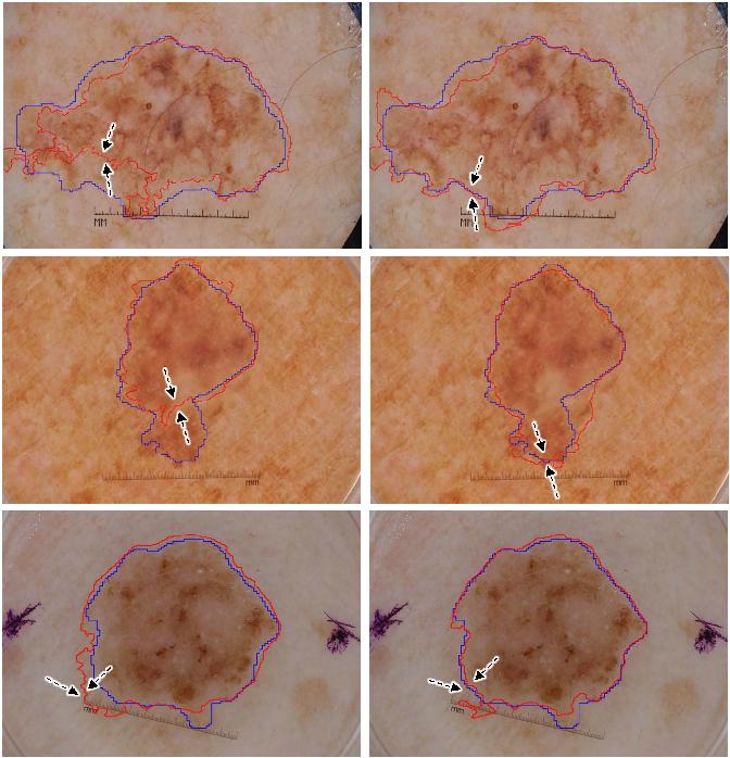 Figure 4 for Transformation Consistent Self-ensembling Model for Semi-supervised Medical Image Segmentation