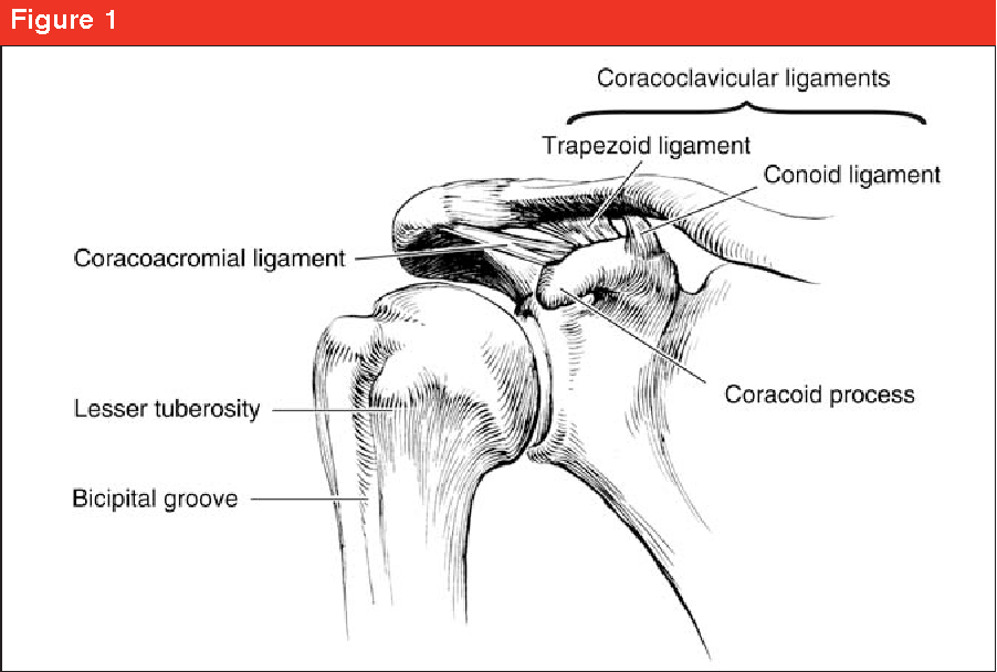 Acromioclavicular joint injuries: diagnosis and management ...