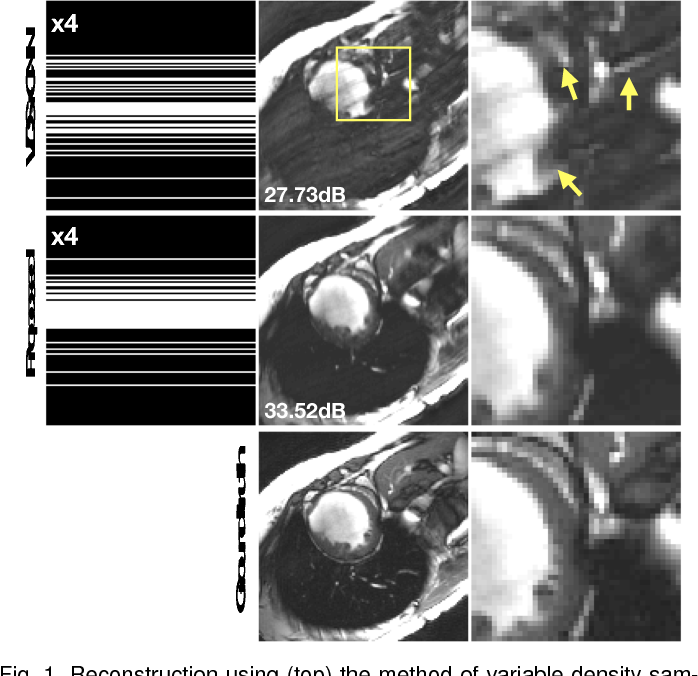 Figure 1 for Self-Supervised Deep Active Accelerated MRI