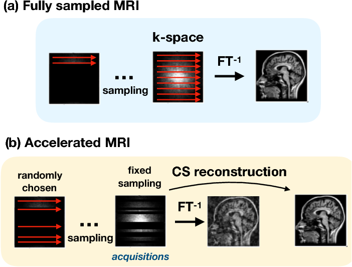 Figure 3 for Self-Supervised Deep Active Accelerated MRI