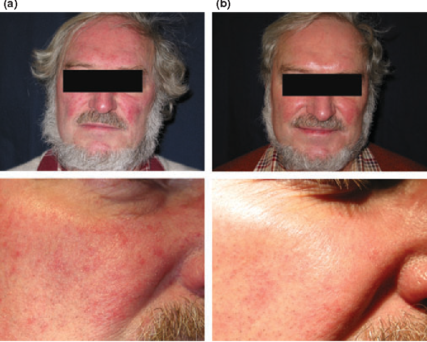 Figure 5 from Papulopustular rosacea, skin immunity and Demodex