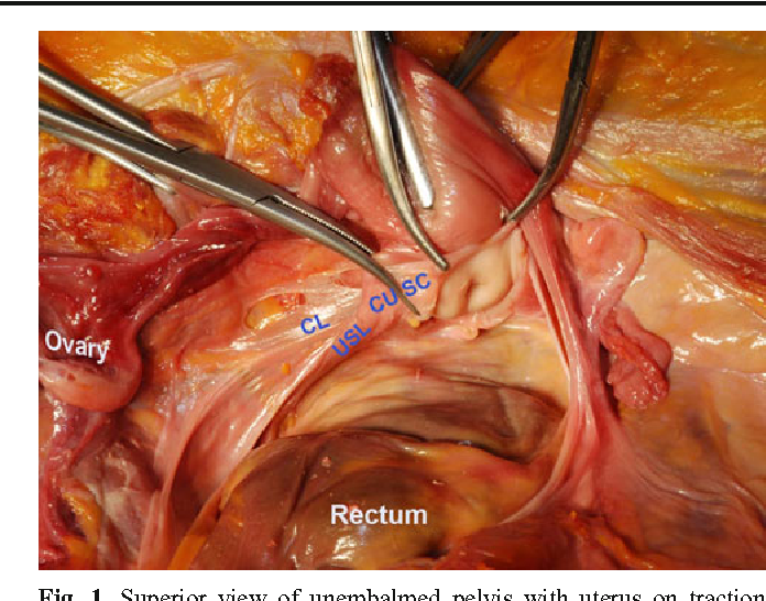 Cardinal ligament surgical anatomy: cardinal points at hysterectomy ...