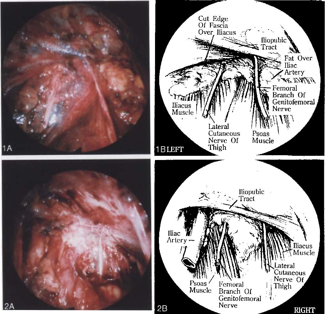 Laparoscopic Identification Of Preperitoneal Nerve Anatomy In The