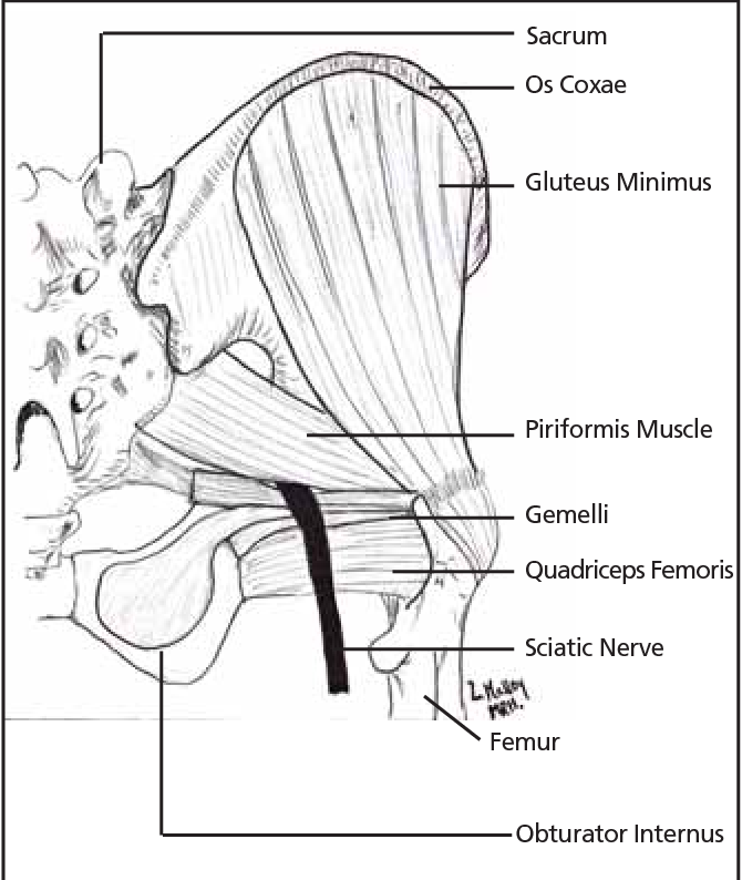 Figure 1 From Diagnosis And Management Of Piriformis Syndrome An