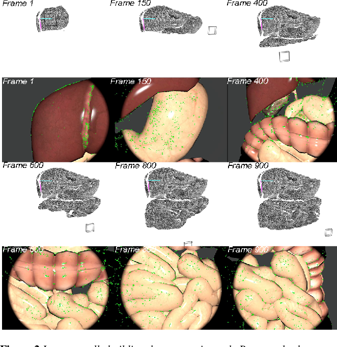 Figure 2 for Real-time Geometry-Aware Augmented Reality in Minimally Invasive Surgery