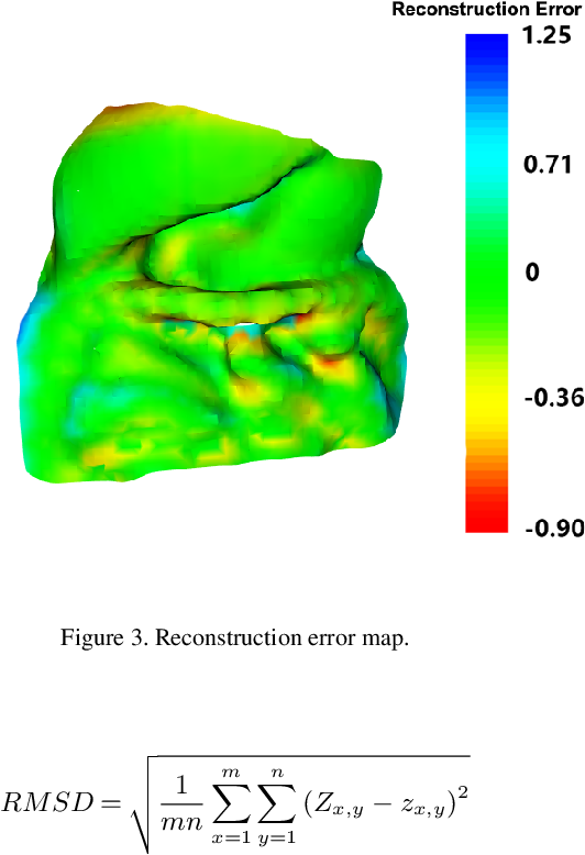 Figure 3 for Real-time Geometry-Aware Augmented Reality in Minimally Invasive Surgery