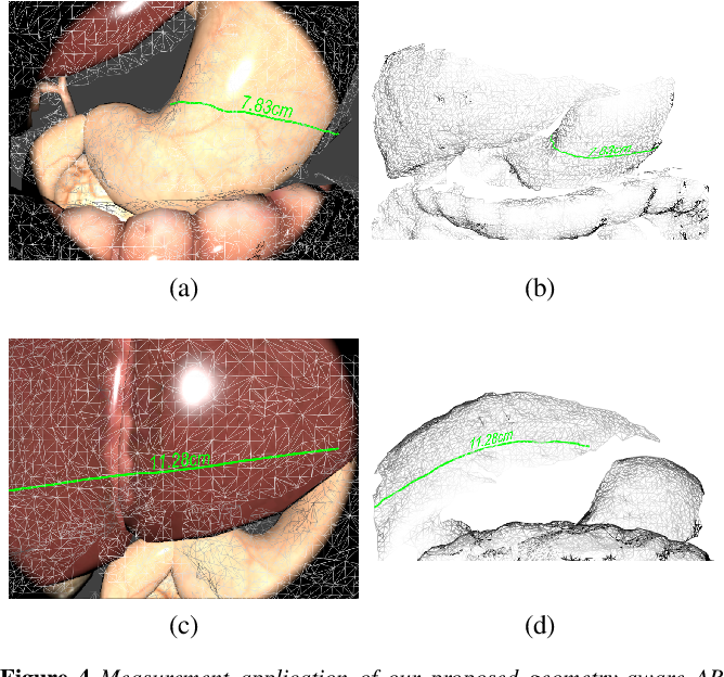 Figure 4 for Real-time Geometry-Aware Augmented Reality in Minimally Invasive Surgery