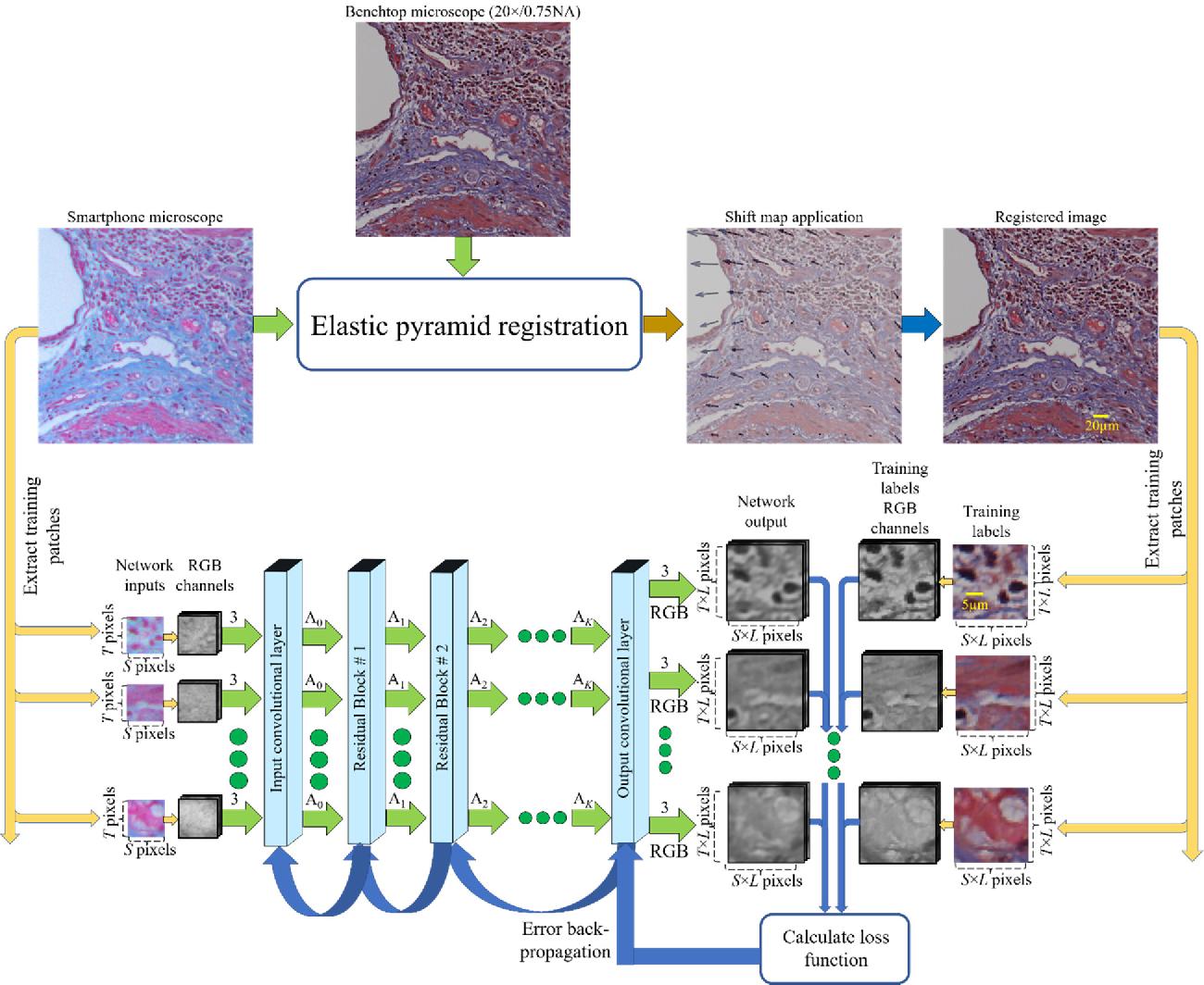 Figure 2 from Deep learning enhanced mobile-phone microscopy