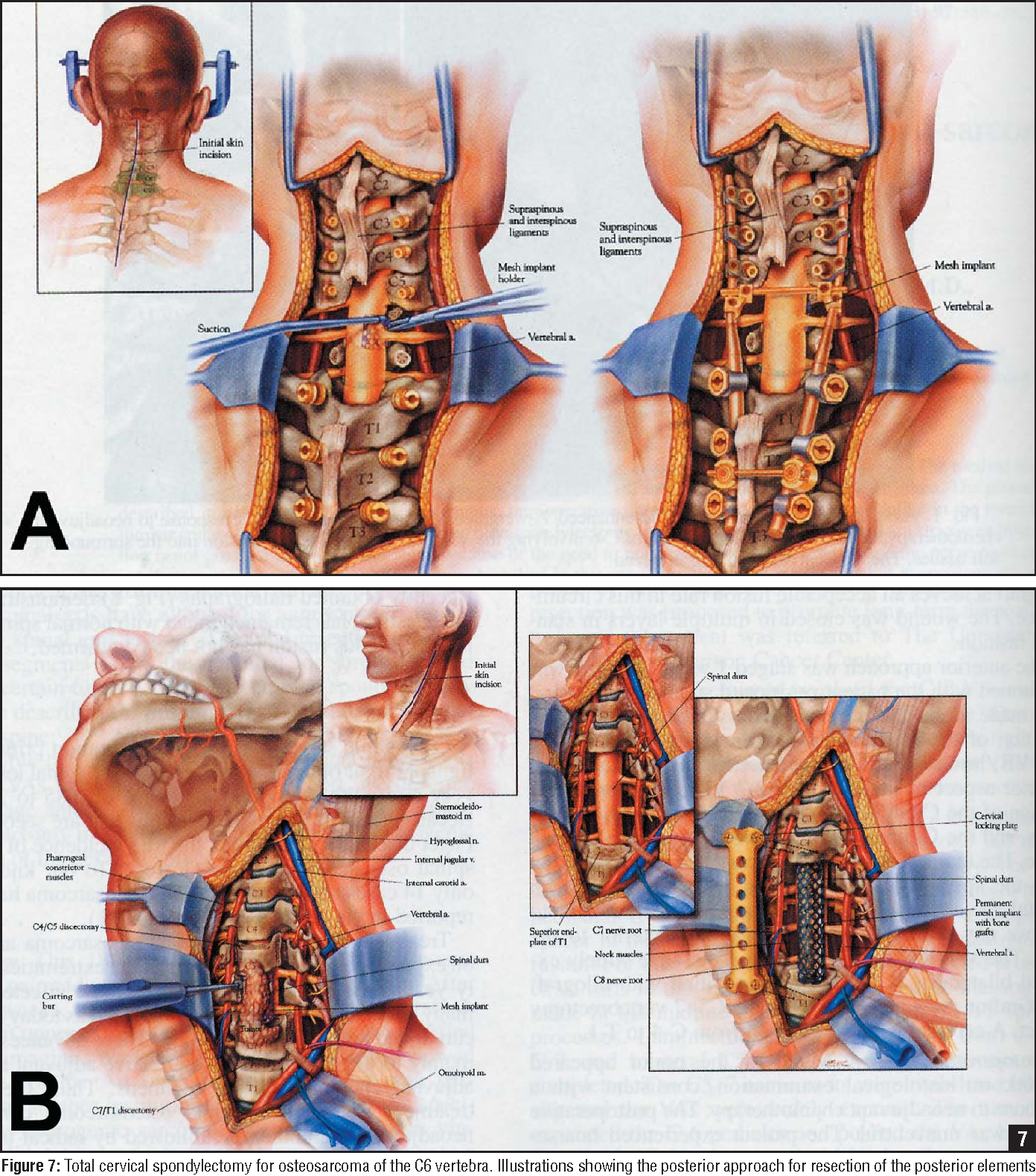 Figure 7 From Primary Malignant Tumors Of The Cervical Spine