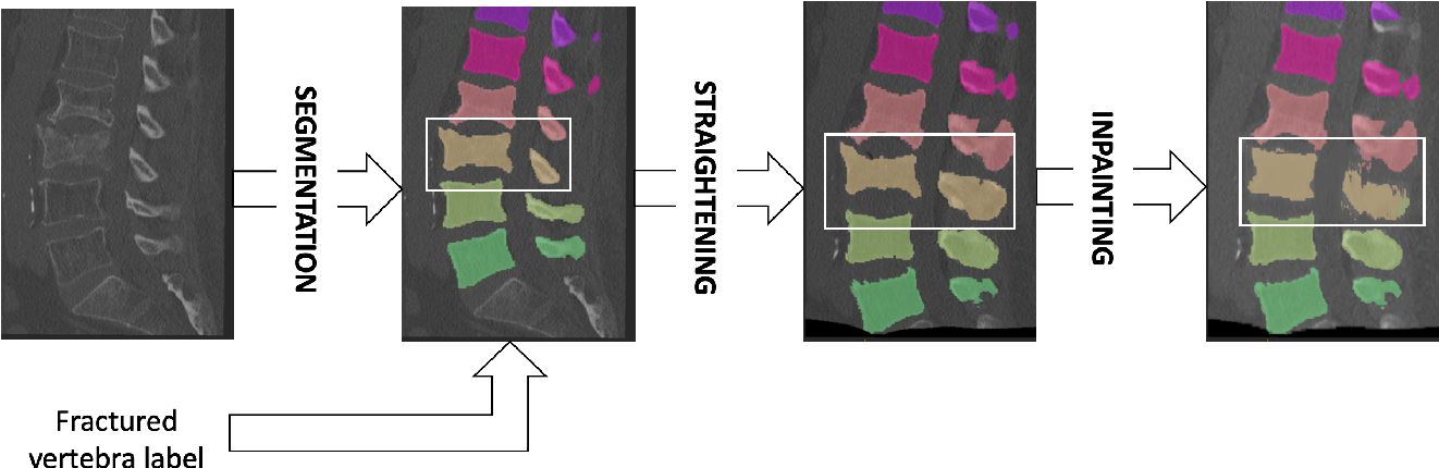 Figure 1 for Patient-specific virtual spine straightening and vertebra inpainting: An automatic framework for osteoplasty planning