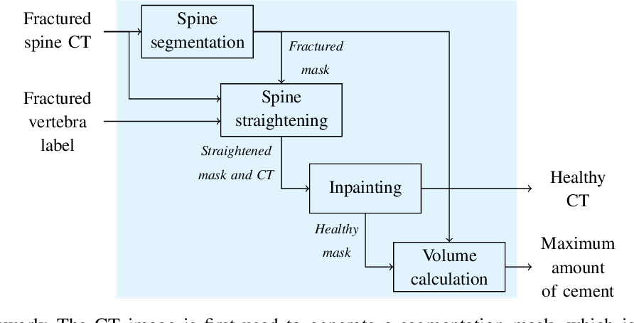 Figure 2 for Patient-specific virtual spine straightening and vertebra inpainting: An automatic framework for osteoplasty planning