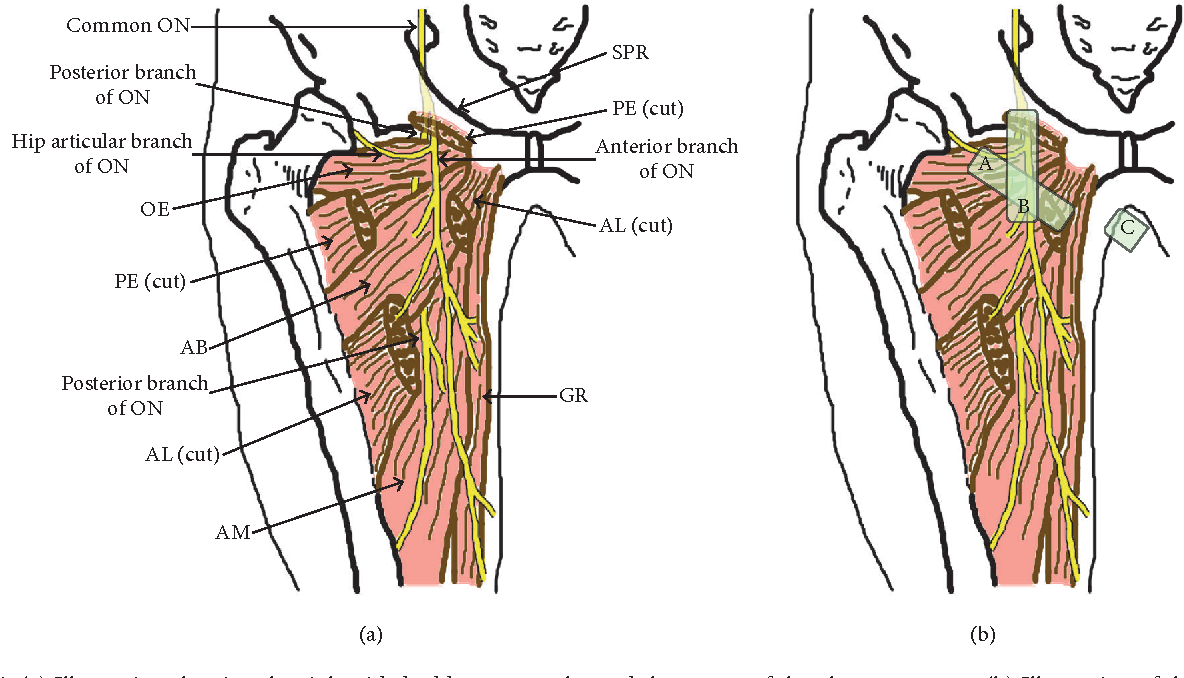Ultrasound-Guided Obturator Nerve Block: A Focused Review on Anatomy ...