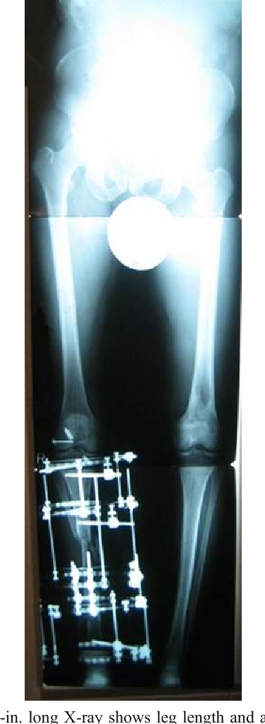 Fig. 4. The 51-in. long X-ray shows leg length and alignment