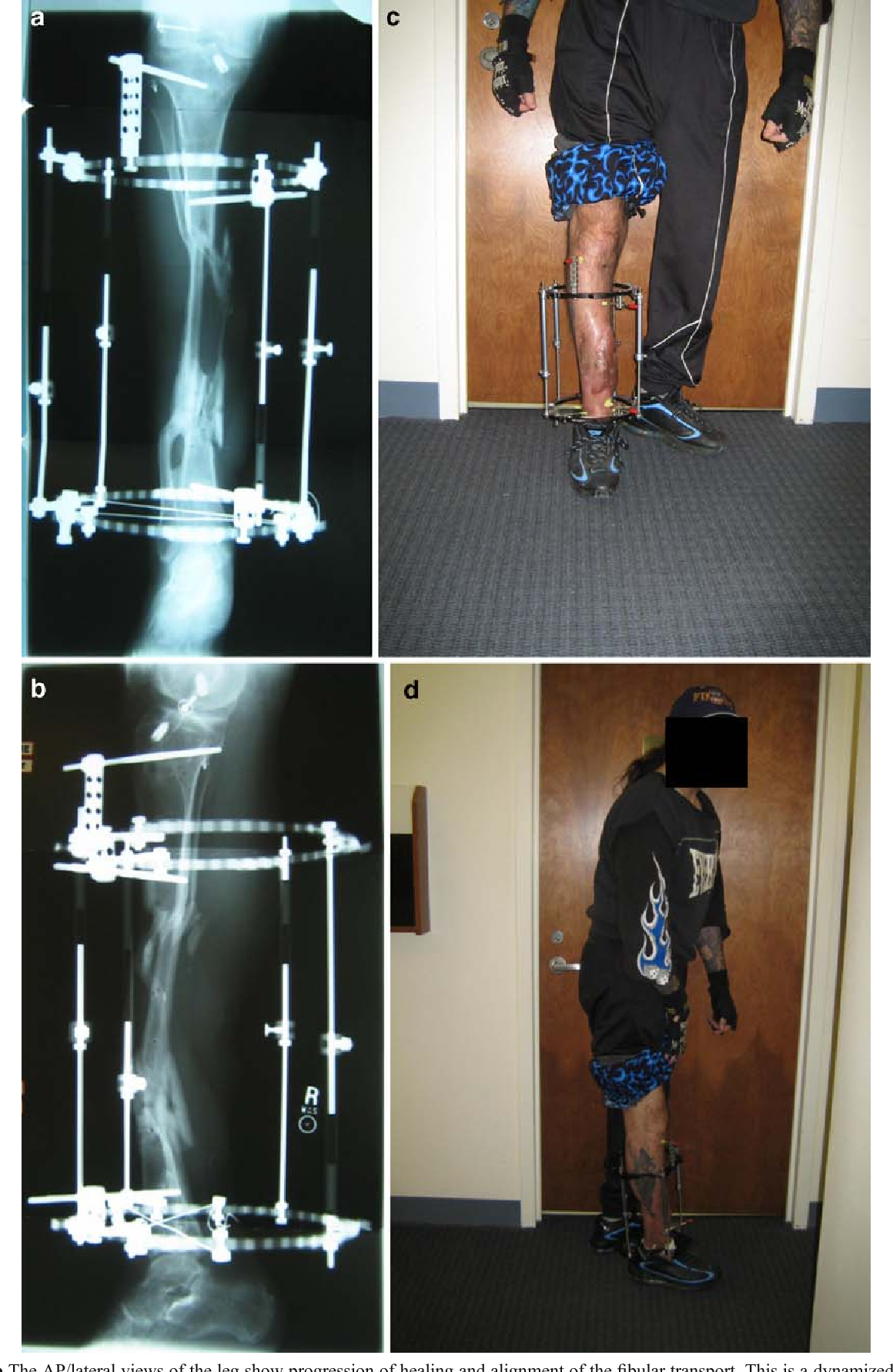 Fig. 5. a, b The AP/lateral views of the leg show progression of healing and alignment of the fibular transport. This is a dynamized frame. c, d Pictures of the patient standing and full weight bearing after frame modification and dynamization