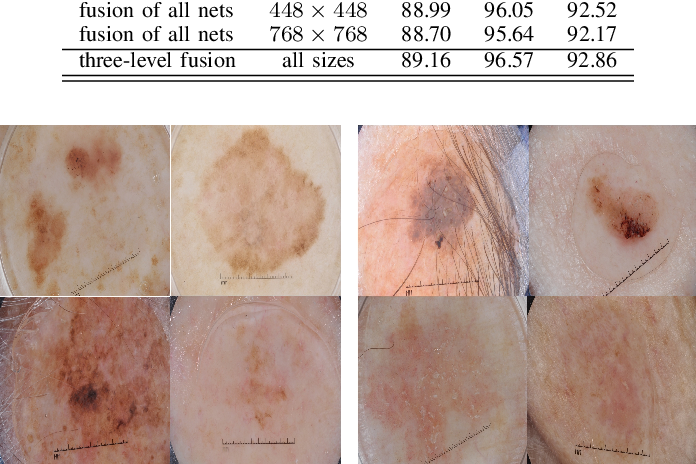 Figure 3 for Investigating and Exploiting Image Resolution for Transfer Learning-based Skin Lesion Classification
