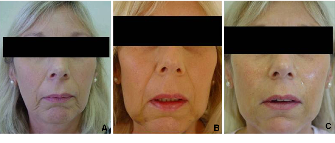 Figure 2 from Outcomes in Thread Lift for Facial Rejuvenation: a