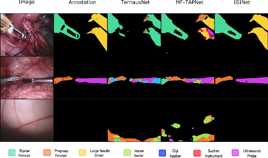 Figure 4 for ISINet: An Instance-Based Approach for Surgical Instrument Segmentation