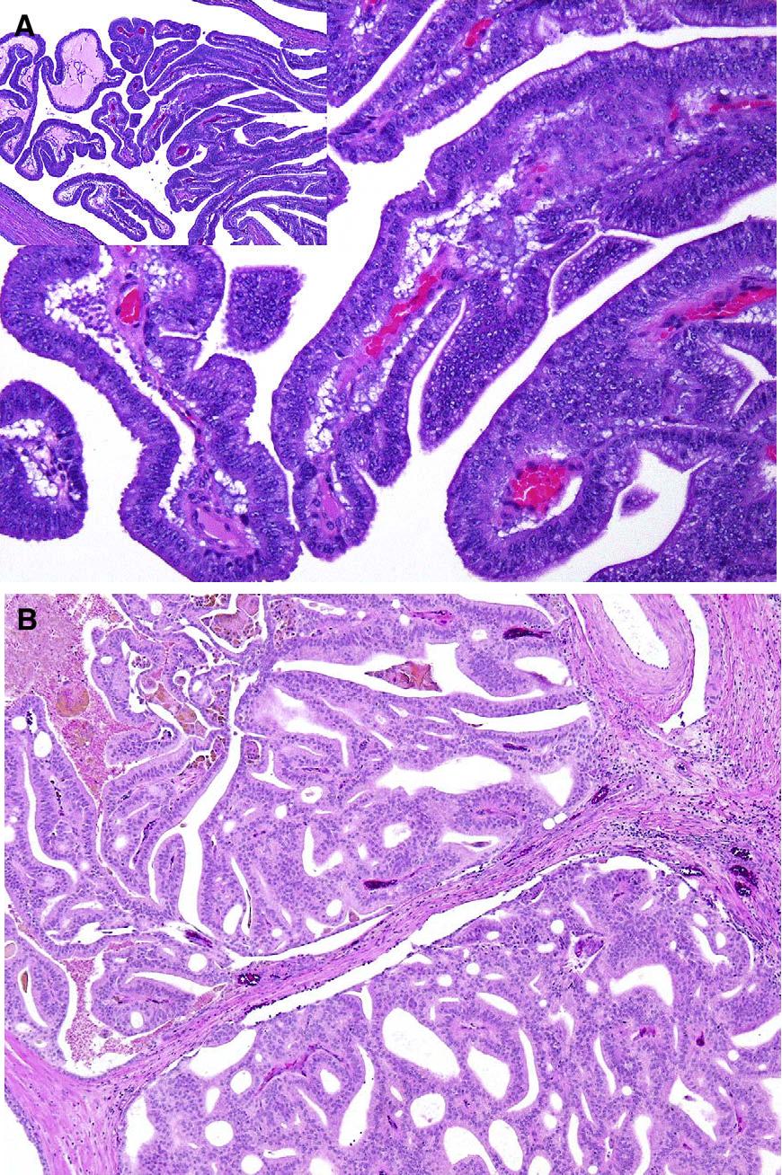 adenocarcinoma acinare della prostata gleason 3 4