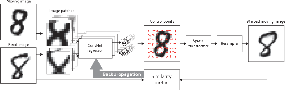 Figure 1 for End-to-End Unsupervised Deformable Image Registration with a Convolutional Neural Network