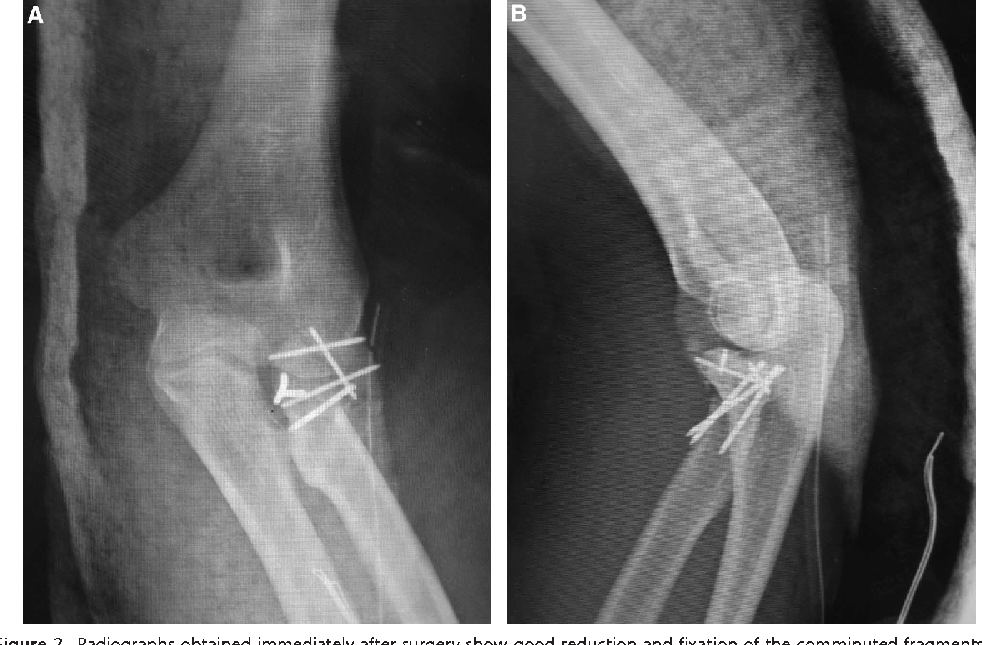Extreme Comminuted Fracture Of The Radial Head Fixed With Multiple