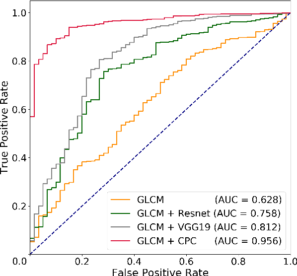 Figure 3 for Weakly Supervised Prostate TMA Classification via Graph Convolutional Networks