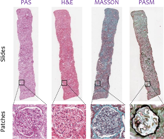 Figure 1 for G2C: A Generator-to-Classifier Framework Integrating Multi-Stained Visual Cues for Pathological Glomerulus Classification