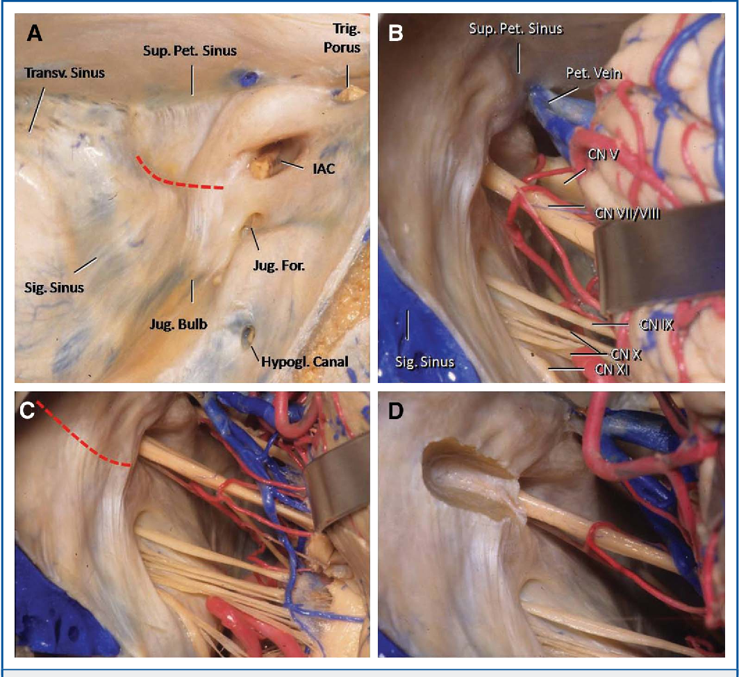 Dural landmark to locate the internal auditory canal in large and ...