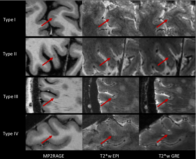 Figure 1 for Automated Detection of Cortical Lesions in Multiple Sclerosis Patients with 7T MRI