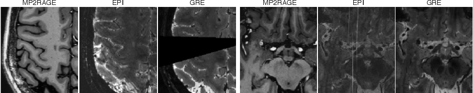Figure 3 for Automated Detection of Cortical Lesions in Multiple Sclerosis Patients with 7T MRI