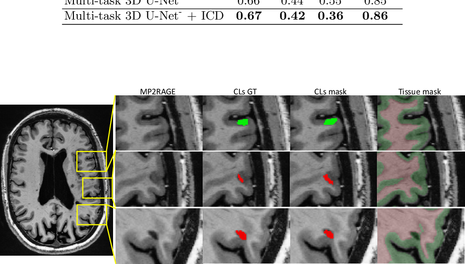 Figure 4 for Automated Detection of Cortical Lesions in Multiple Sclerosis Patients with 7T MRI