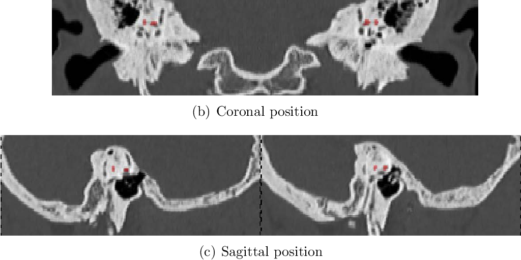 Figure 3 for A lateral semicircular canal segmentation based geometric calibration for human temporal bone CT Image