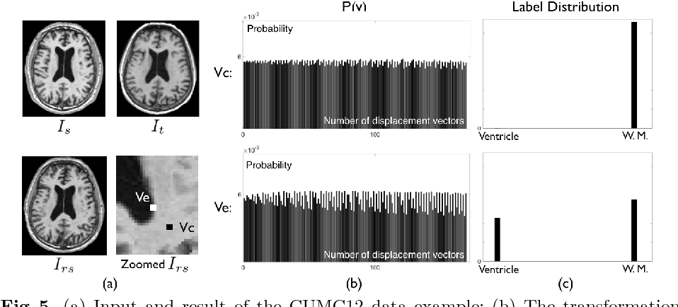 Figure 4 for On the Ambiguity of Registration Uncertainty