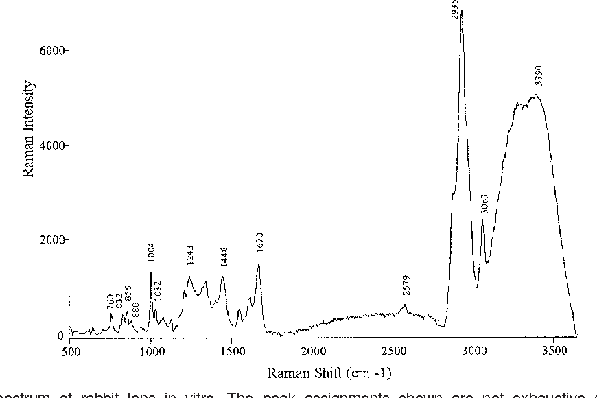 Raman spectroscopy in ophthalmology from experimental tool to figure 2 ccuart Images