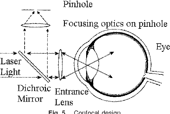 Raman spectroscopy in ophthalmology from experimental tool to figure 5 ccuart Images