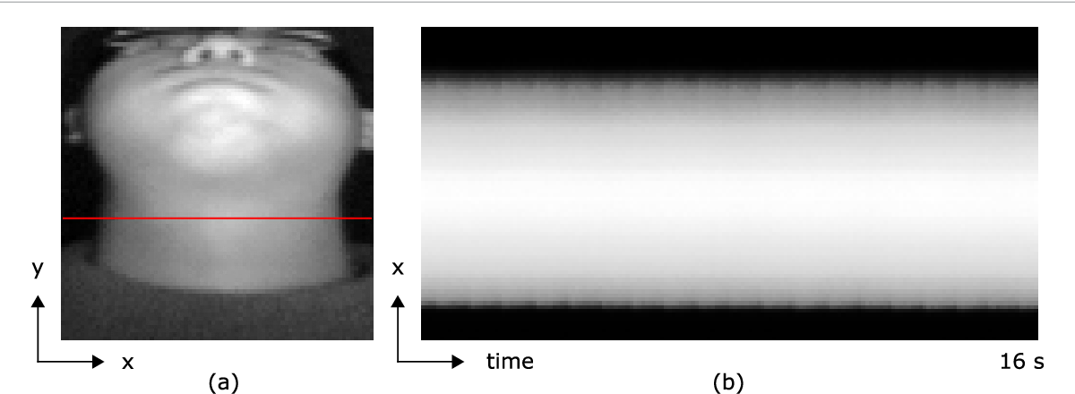 Figure 1 for Estimating Carotid Pulse and Breathing Rate from Near-infrared Video of the Neck
