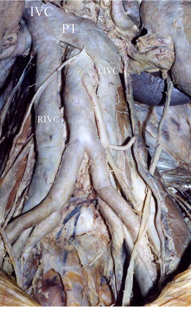 Duplication of the inferior vena cava: anatomy, embryology and ...