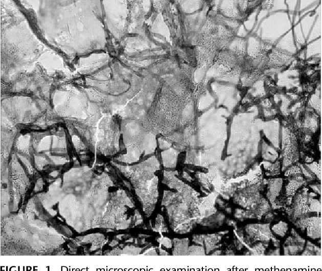 FIGURE 1. Direct microscopic examination after methenamine silver (Musto) staining of the cutaneous biopsy showing broad, ribbon-like irregular fungal hyphae, characteristic of a zygomycete.