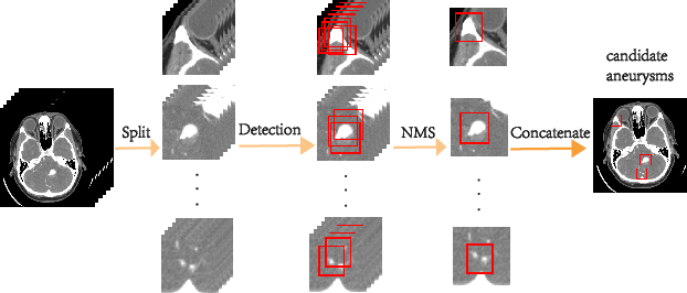 Figure 3 for Deep Learning Based Detection and Localization of Cerebal Aneurysms in Computed Tomography Angiography